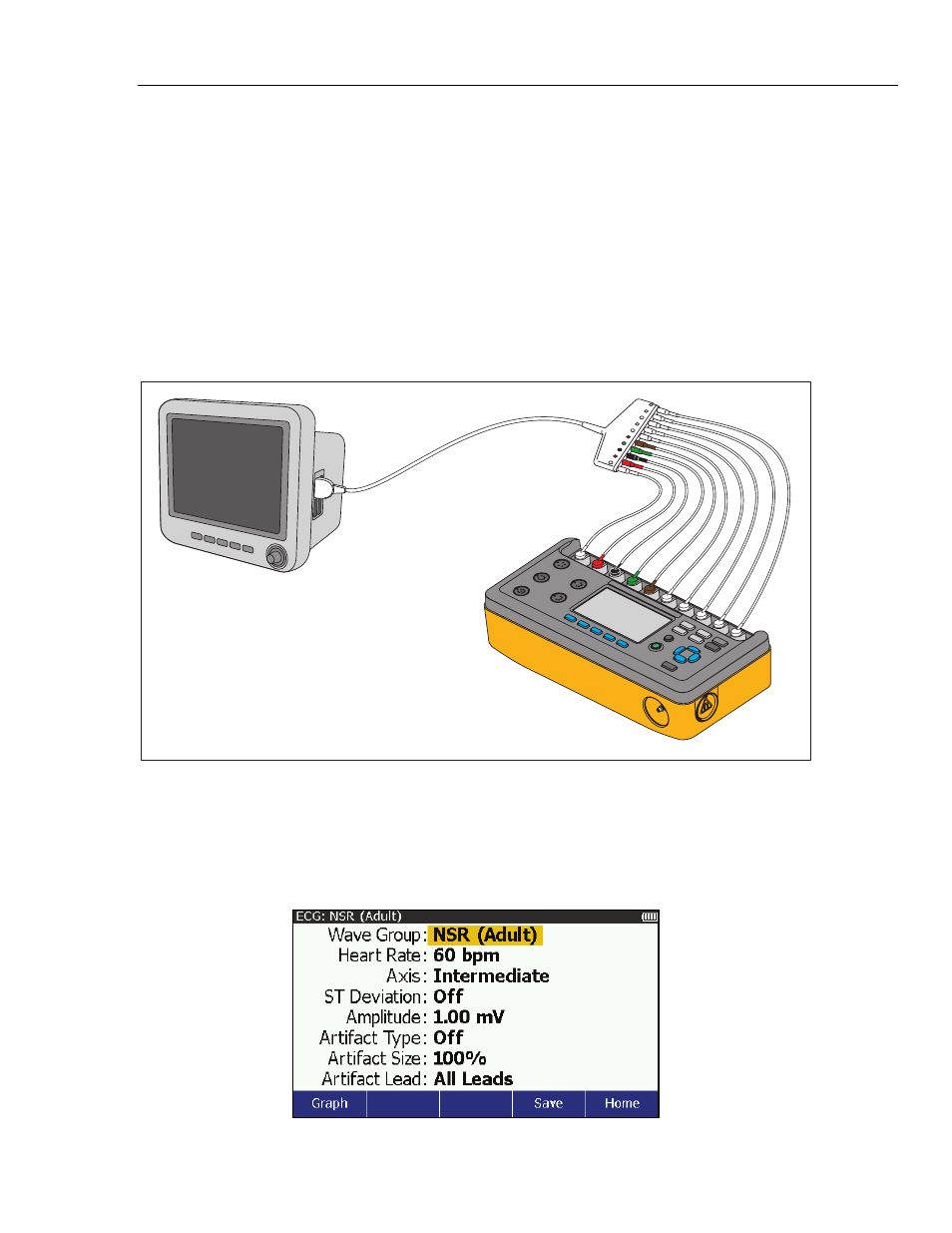 Ecg function, How to set the ecg parameters   Fluke Biomedical