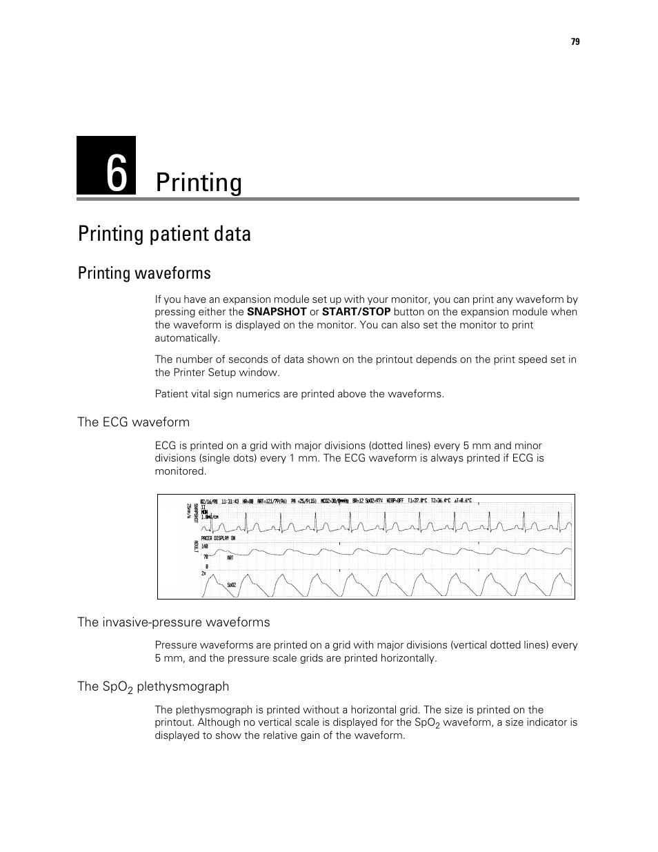 Printing, Printing patient data, 6 - printing | Printing waveforms | Welch  Allyn Vital